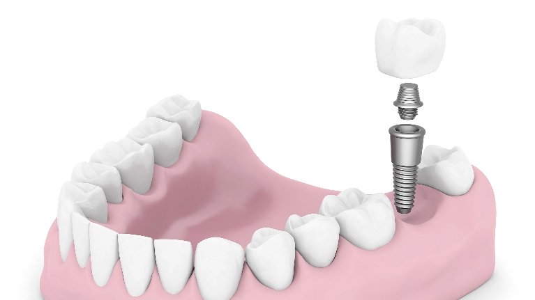 Dental Implants Chico CA