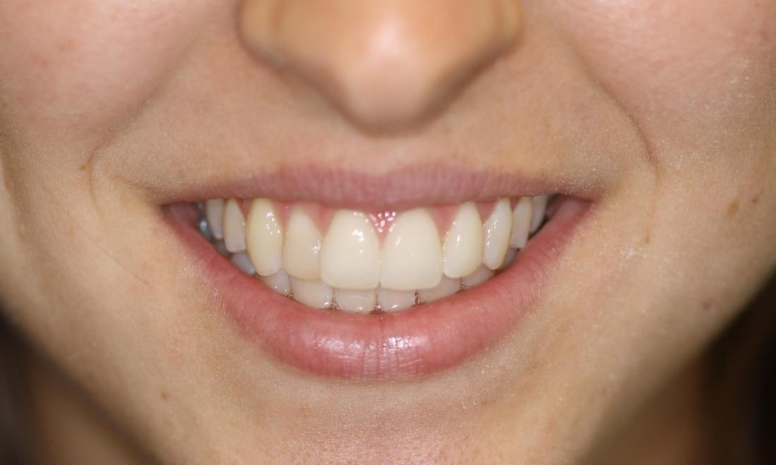 Six Month Smiles Case