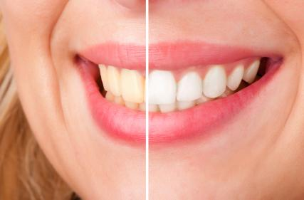 Teeth Whitening Chico CA
