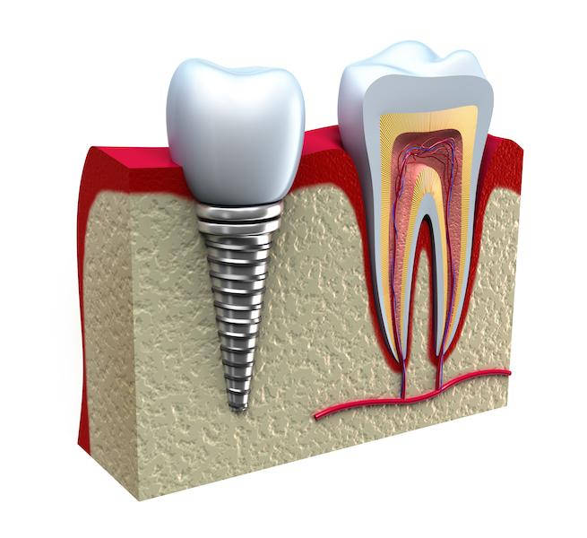 dental implant diagram | Dental Implants Chico CA
