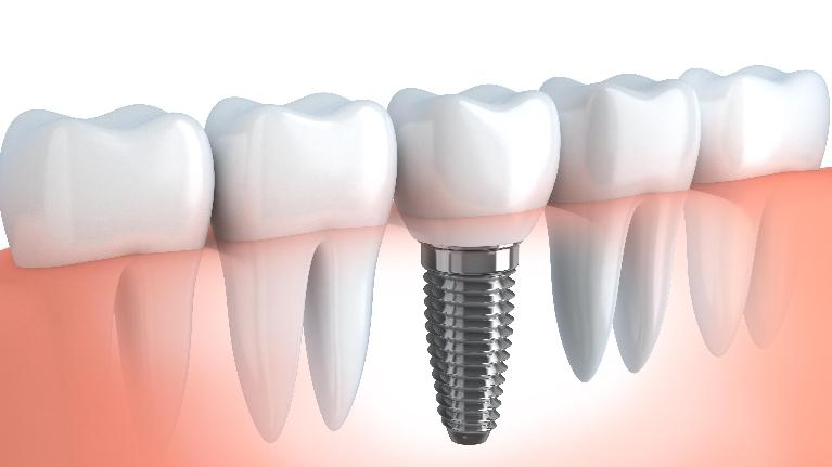 Dental Implants | Chico CA