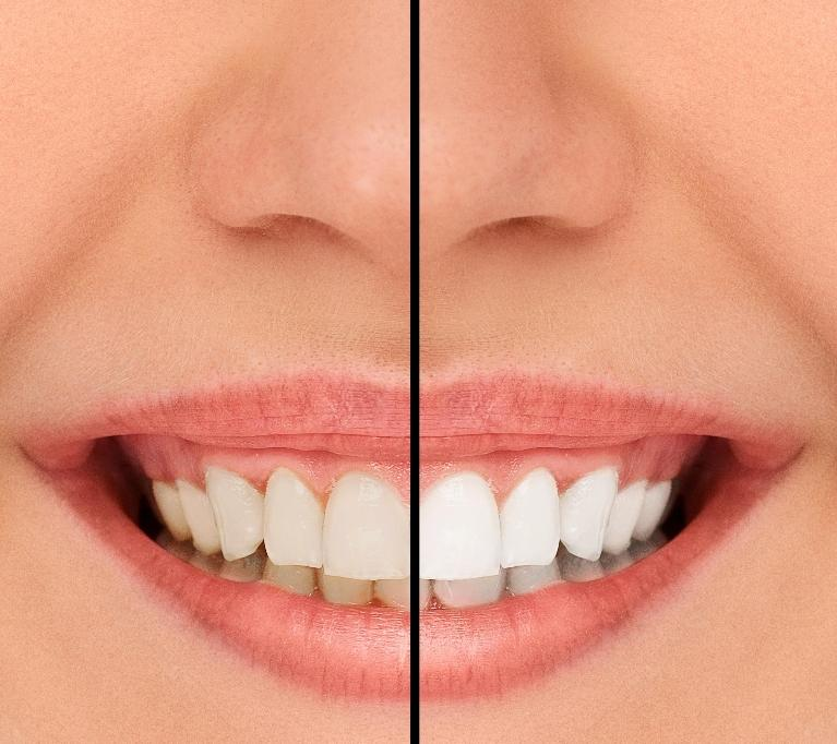Professional Teeth Whitening Chico CA