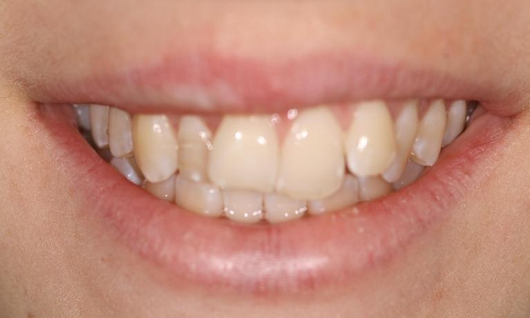 Six-Month-Smiles-Case-Before-Image